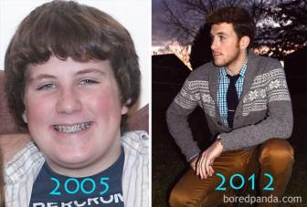 صور تغير كبير بين سن المراهقة والبلوغ