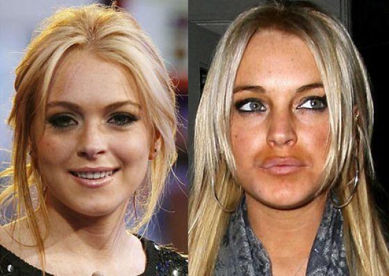 صور مشاهير قبل و بعد عمليات التجميل